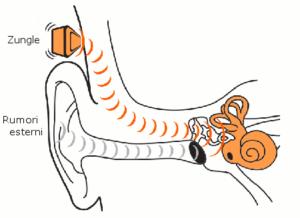 Bone Conduction Speakers